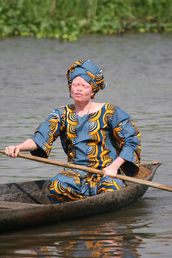 Albino_woman_in_canoe,_Benin